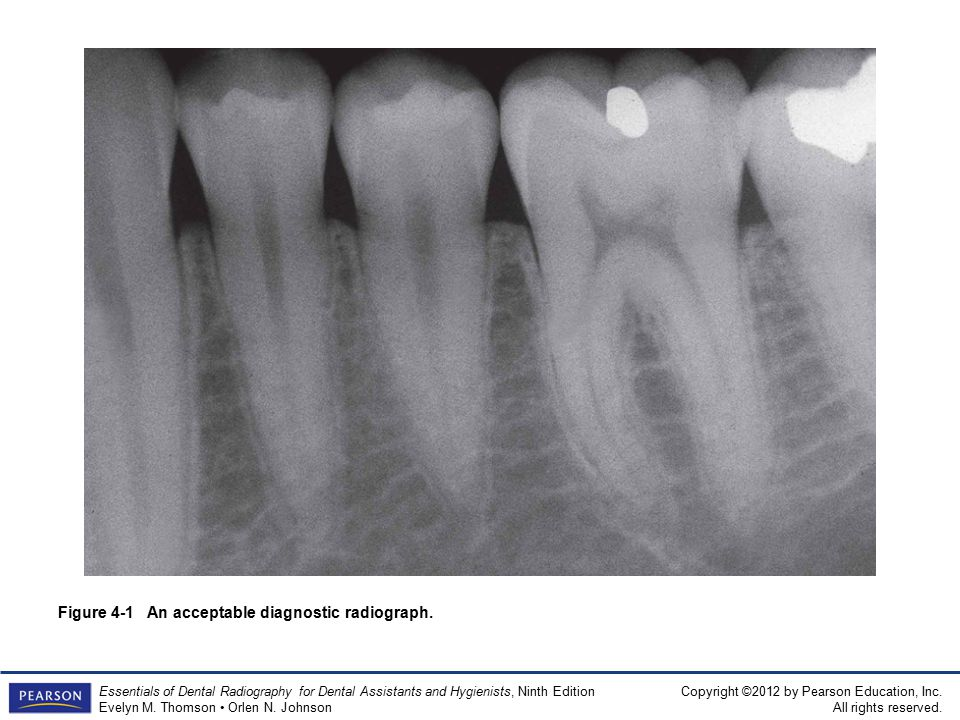 Figure 4-1 An acceptable diagnostic radiograph.