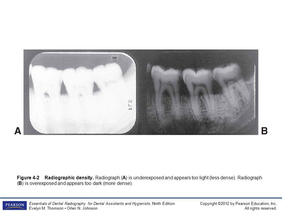 Figure 4-2 Radiographic density