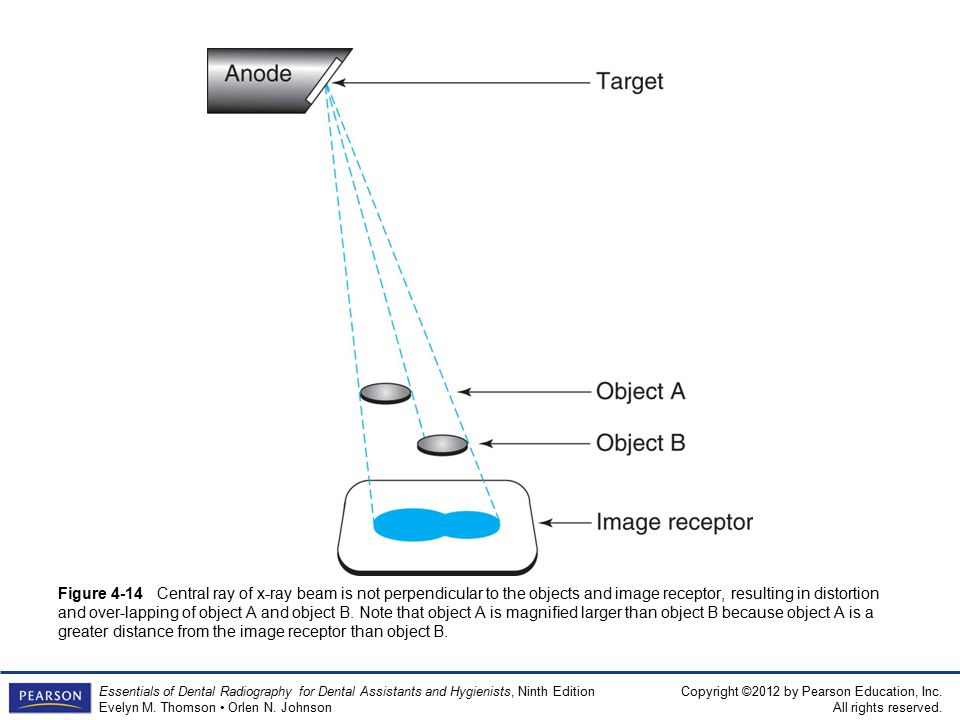 Figure 4-14 Central ray of x-ray beam is not perpendicular to the objects and image receptor, resulting in distortion and over-lapping of object A and object B.