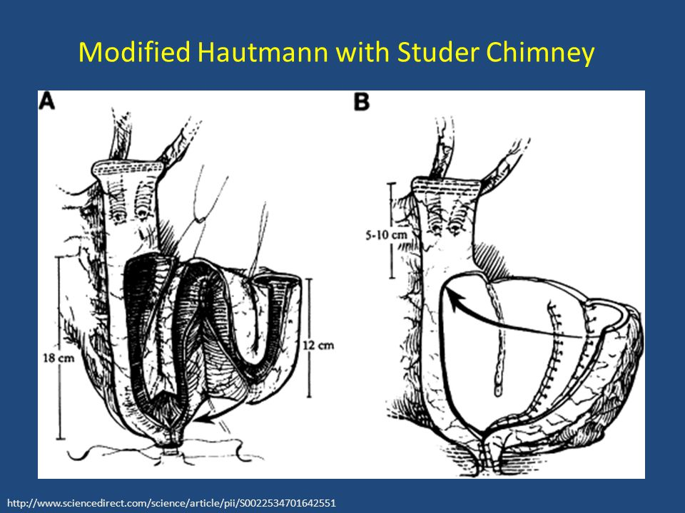 Modified Hautmann with Studer Chimney