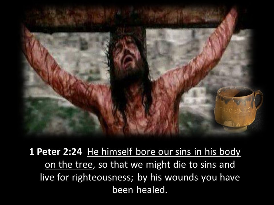 1 Peter 2:24 He himself bore our sins in his body on the tree, so that we might die to sins and live for righteousness; by his wounds you have been healed.