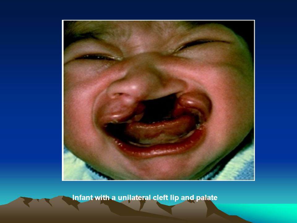 Infant with a unilateral cleft lip and palate