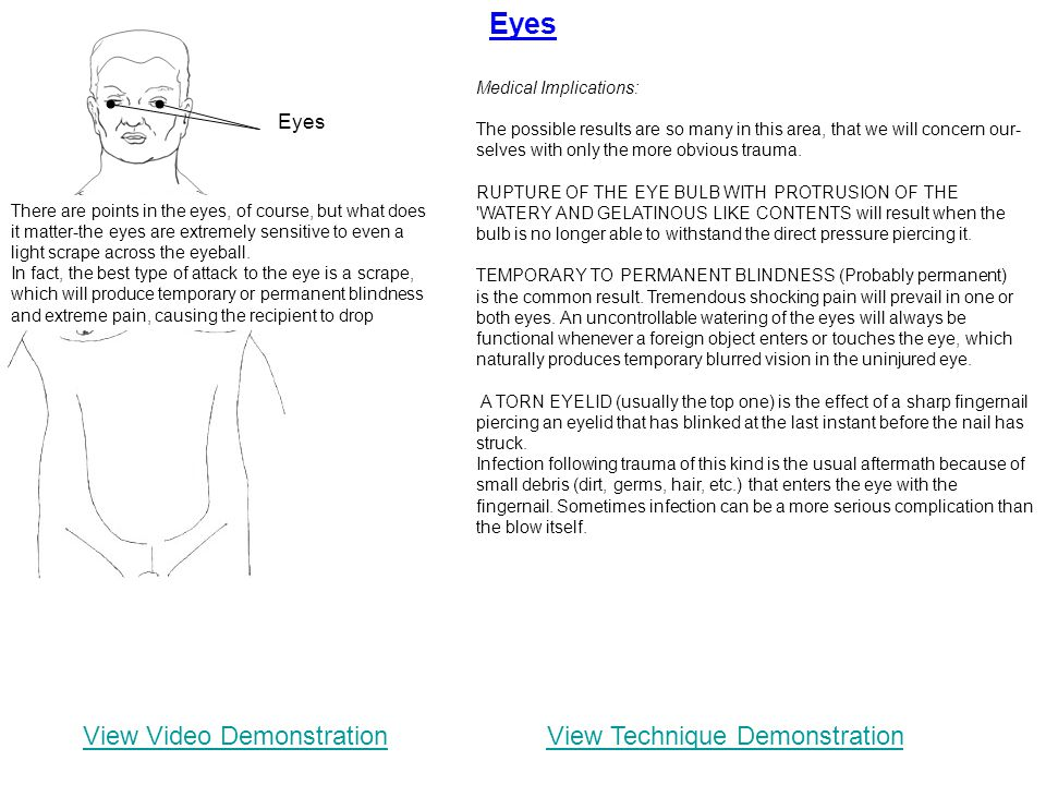 Eyes View Video Demonstration View Technique Demonstration Eyes