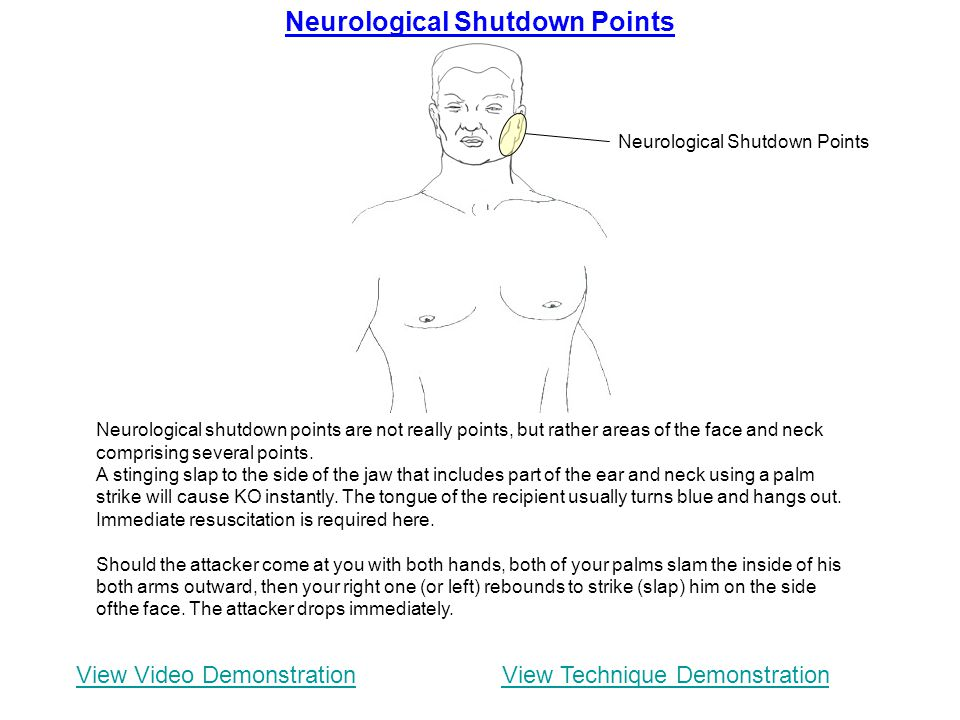 Neurological Shutdown Points