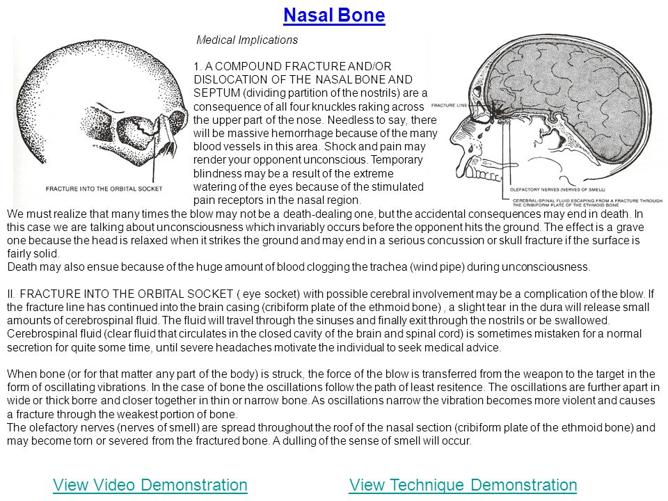 Nasal Bone View Video Demonstration View Technique Demonstration