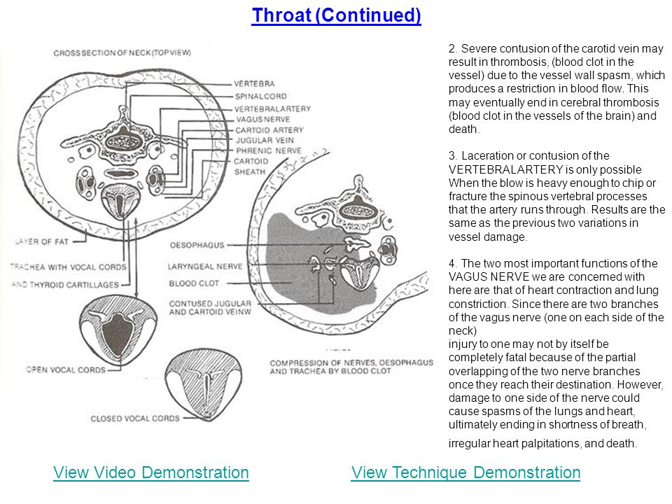 Throat (Continued) View Video Demonstration