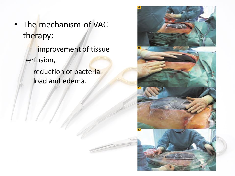 The mechanism of VAC therapy: improvement of tissue perfusion,