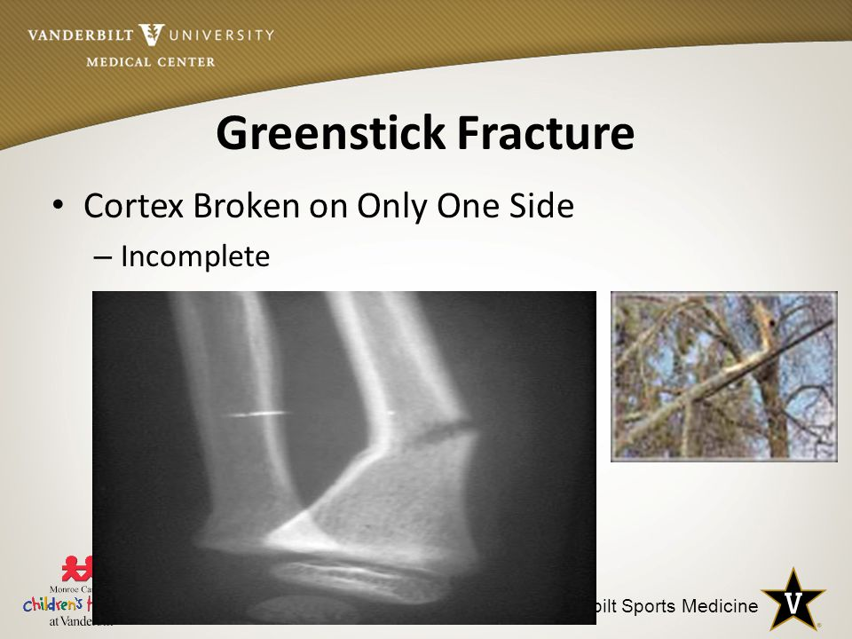 Greenstick Fracture Cortex Broken on Only One Side Incomplete