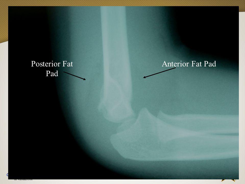 Posterior Fat Pad Anterior Fat Pad