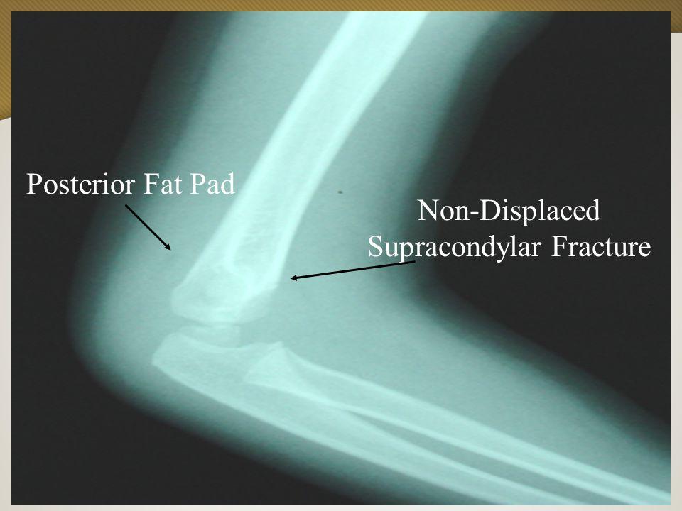 Non-Displaced Supracondylar Fracture