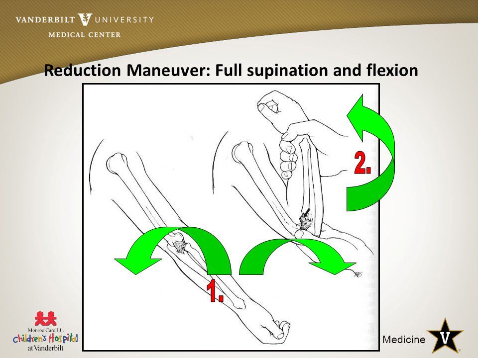 Reduction Maneuver: Full supination and flexion