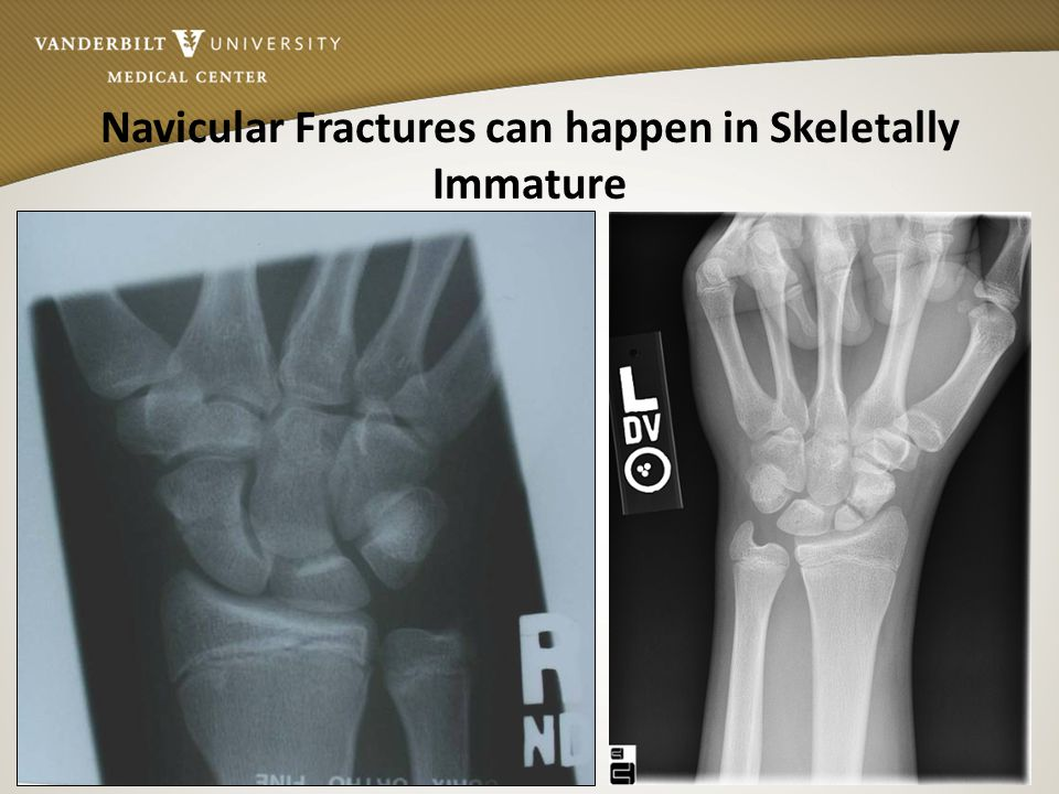 Navicular Fractures can happen in Skeletally Immature