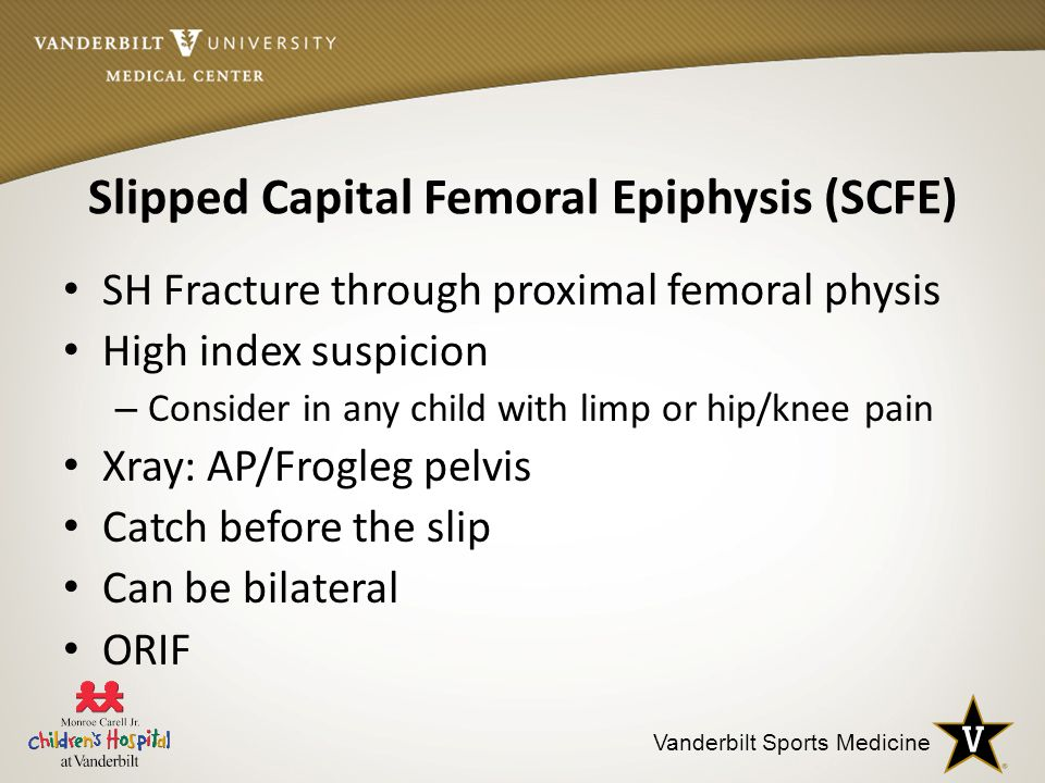 slipped capital femoral epiphysis essay Slipped capital femoral epiphysis (scfe or skiffy, slipped upper femoral epiphysis, sufe or souffy, coxa vara adolescentium) is a medical term referring to a fracture through the growth plate (physis), which results in slippage of.