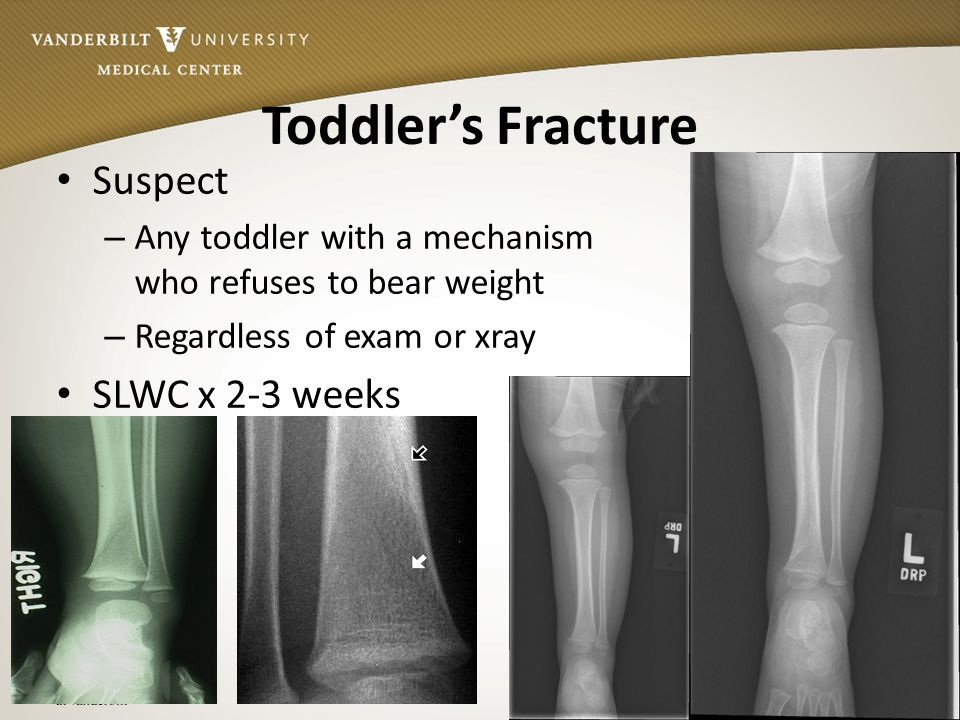 Toddler's Fracture Suspect SLWC x 2-3 weeks