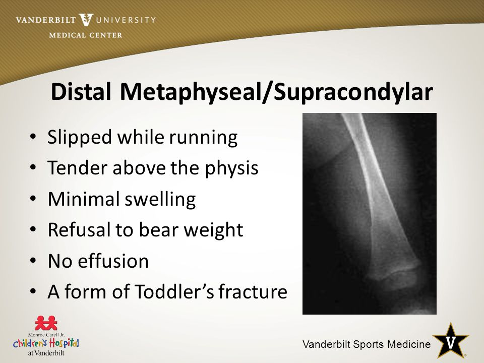 Distal Metaphyseal/Supracondylar