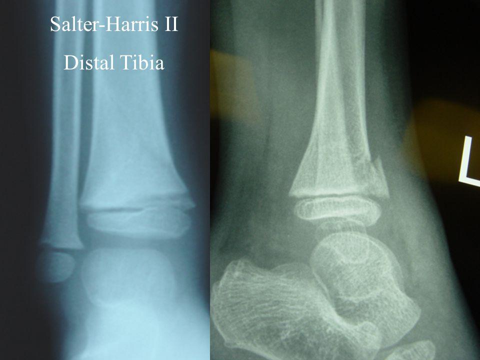 Salter-Harris II Distal Tibia