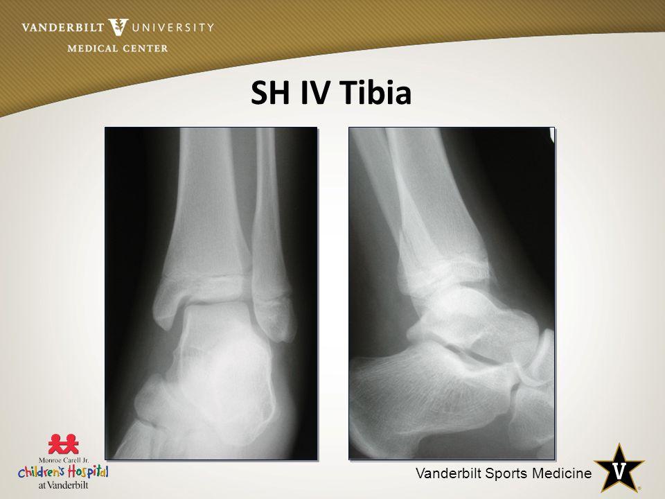 SH IV Tibia