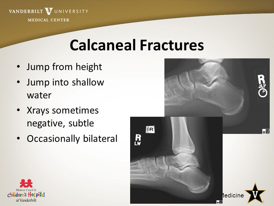 Calcaneal Fractures Jump from height Jump into shallow water