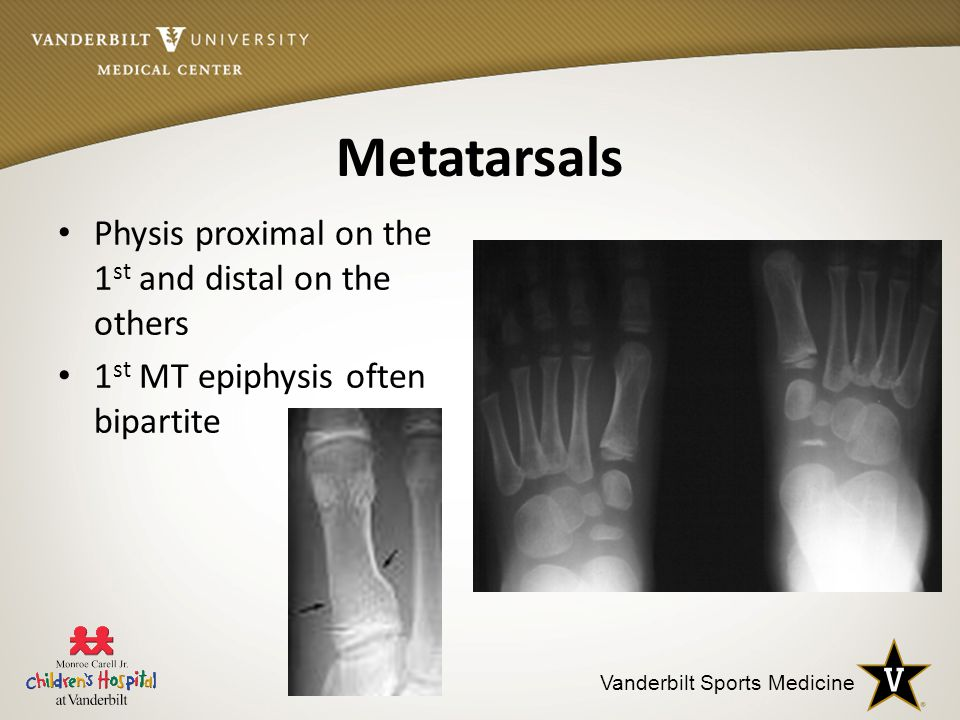 Metatarsals Physis proximal on the 1st and distal on the others