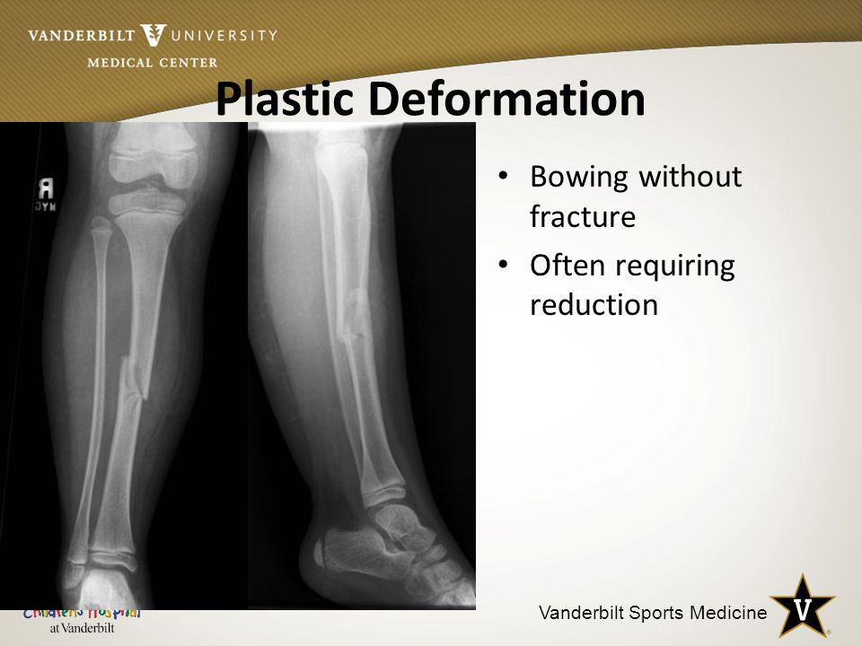 Plastic Deformation Bowing without fracture Often requiring reduction