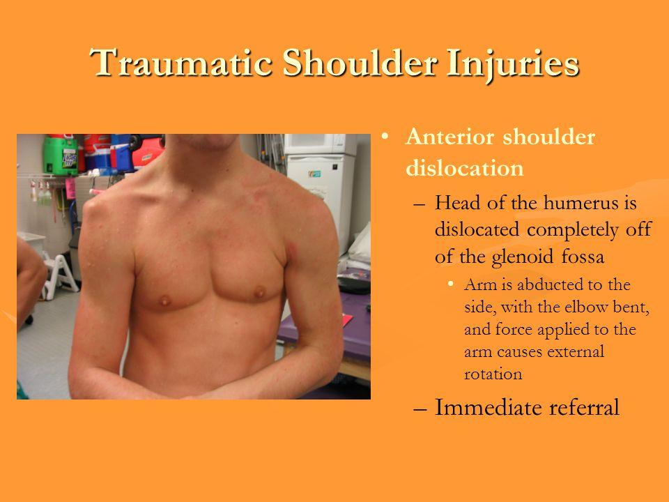 Traumatic Shoulder Injuries
