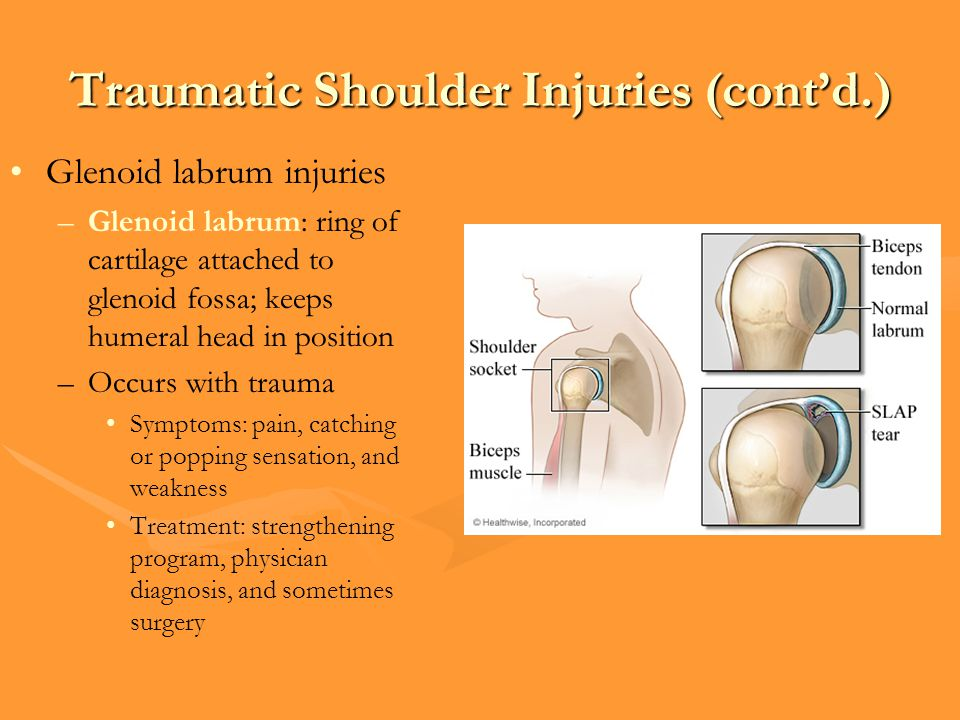 Traumatic Shoulder Injuries (cont'd.)