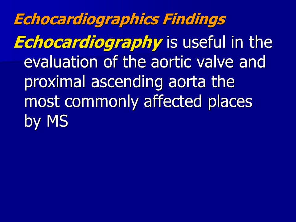 Echocardiographics Findings