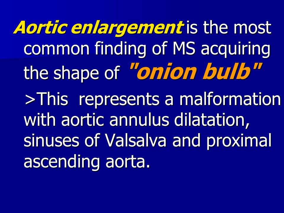 Aortic enlargement is the most common finding of MS acquiring the shape of onion bulb