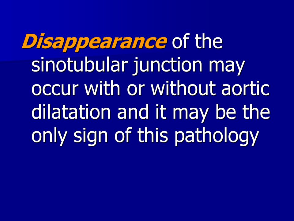 Disappearance of the sinotubular junction may occur with or without aortic dilatation and it may be the only sign of this pathology
