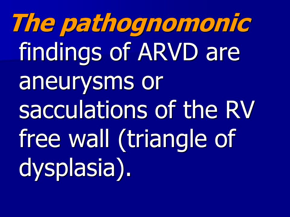 The pathognomonic findings of ARVD are aneurysms or sacculations of the RV free wall (triangle of dysplasia).