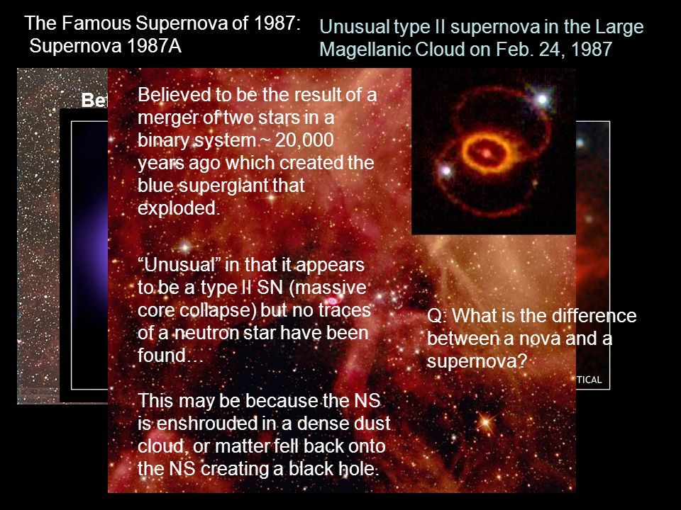 The Famous Supernova of 1987: Supernova 1987A