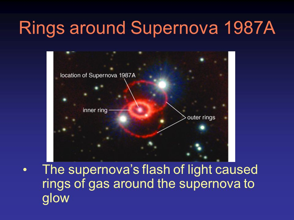 Rings around Supernova 1987A