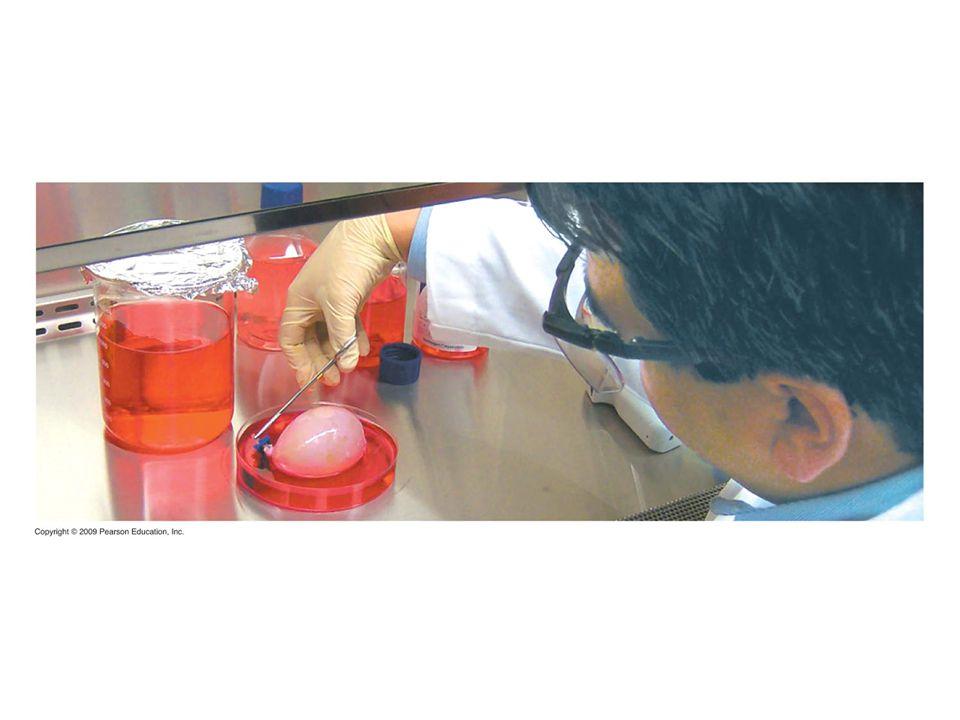 Figure 20.9 A laboratory-grown bladder.