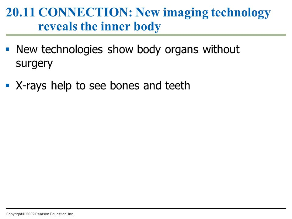 20.11 CONNECTION: New imaging technology reveals the inner body