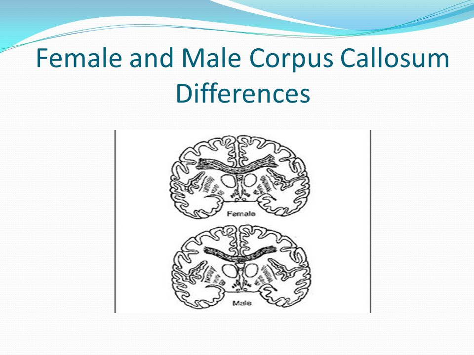 Female and Male Corpus Callosum Differences