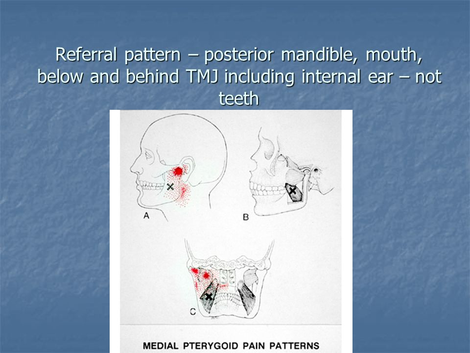 Referral pattern – posterior mandible, mouth, below and behind TMJ including internal ear – not teeth