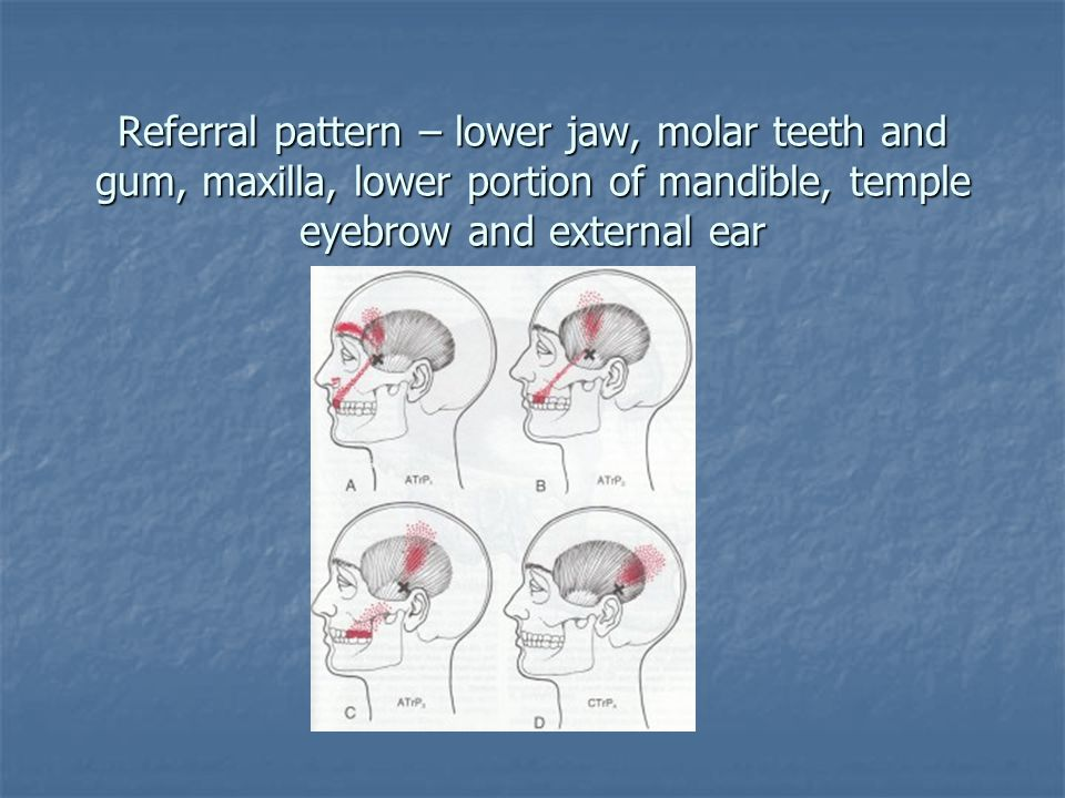 Referral pattern – lower jaw, molar teeth and gum, maxilla, lower portion of mandible, temple eyebrow and external ear