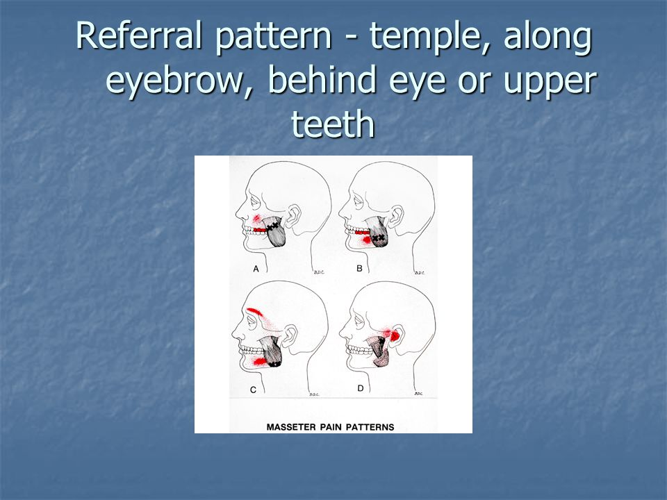 Referral pattern - temple, along eyebrow, behind eye or upper teeth