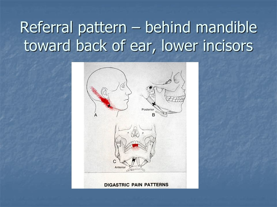 Referral pattern – behind mandible toward back of ear, lower incisors