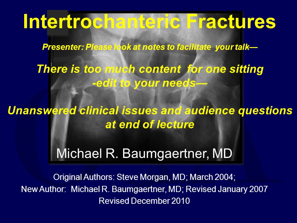 Intertrochanteric Fractures