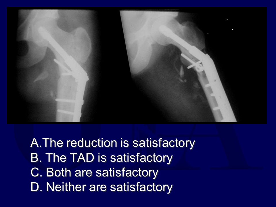A. The reduction is satisfactory B. The TAD is satisfactory C