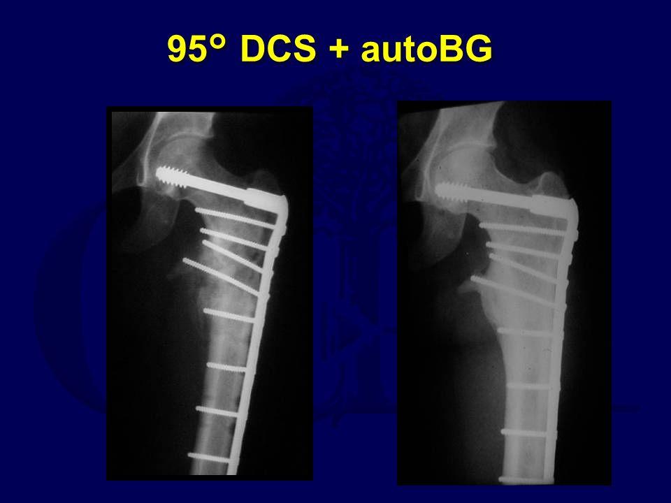 95° DCS + autoBG