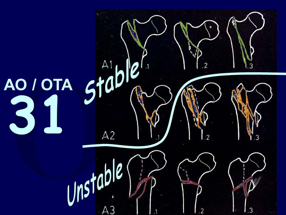 Stable Unstable AO / OTA 31