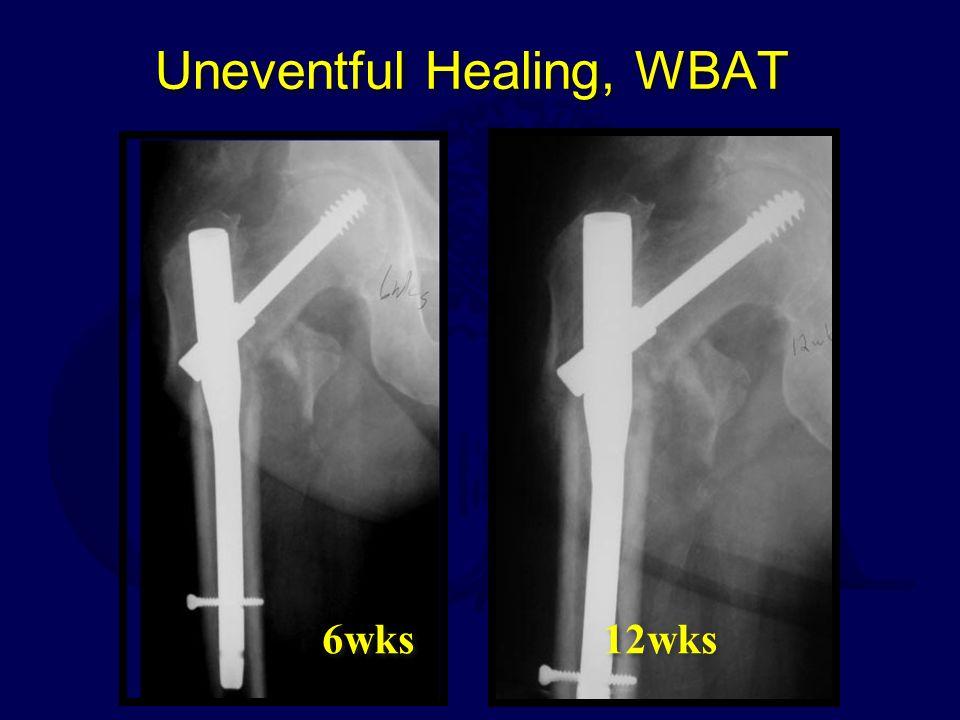 Uneventful Healing, WBAT