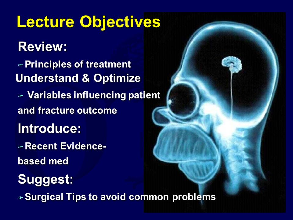 Lecture Objectives Review: Introduce: Suggest: Understand & Optimize