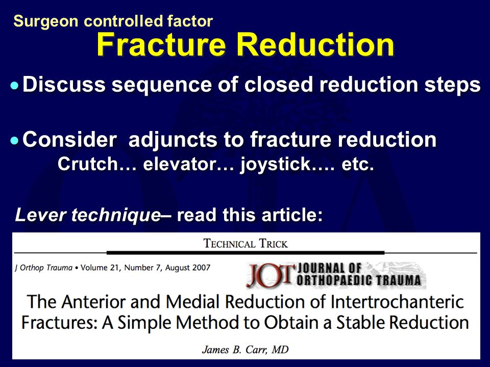 Fracture Reduction Discuss sequence of closed reduction steps
