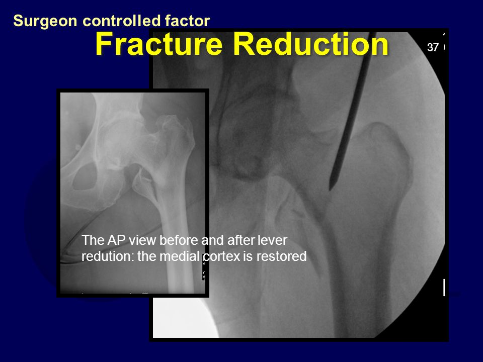 Fracture Reduction Surgeon controlled factor