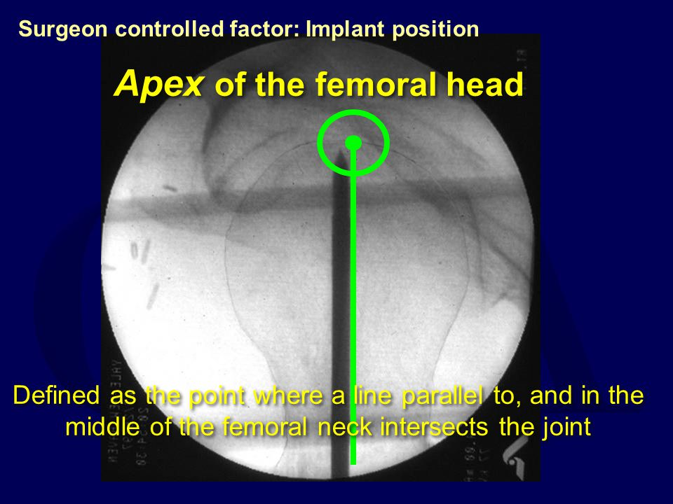 Apex of the femoral head
