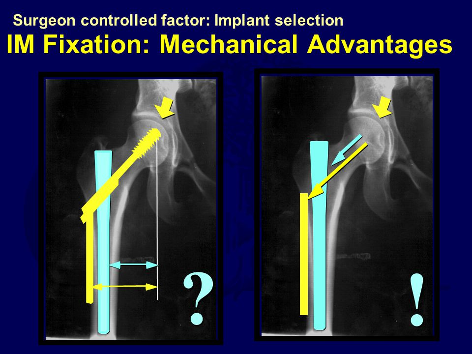 ! ! IM Fixation: Mechanical Advantages