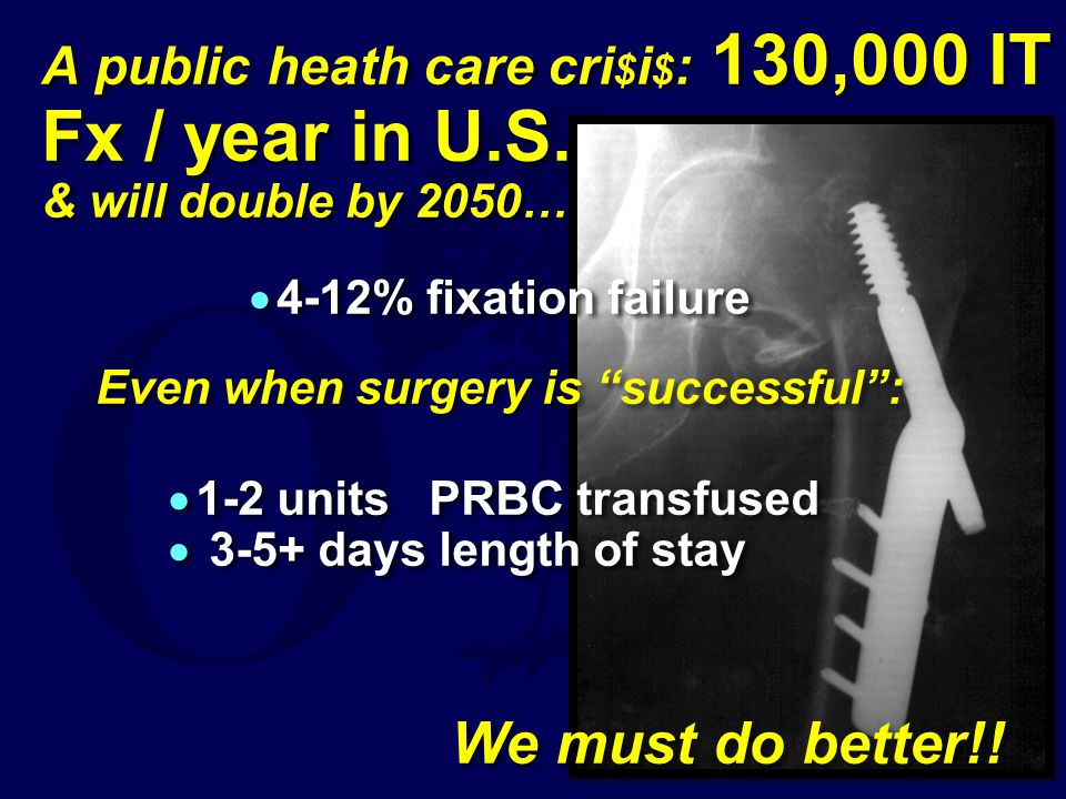 A public heath care cri$i$: 130,000 IT Fx / year in U. S